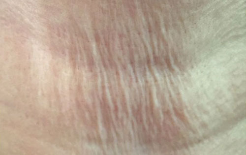 Wrinkled neck treatment