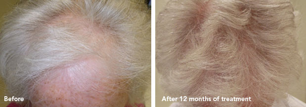 Painless and effective removal of scars by laser