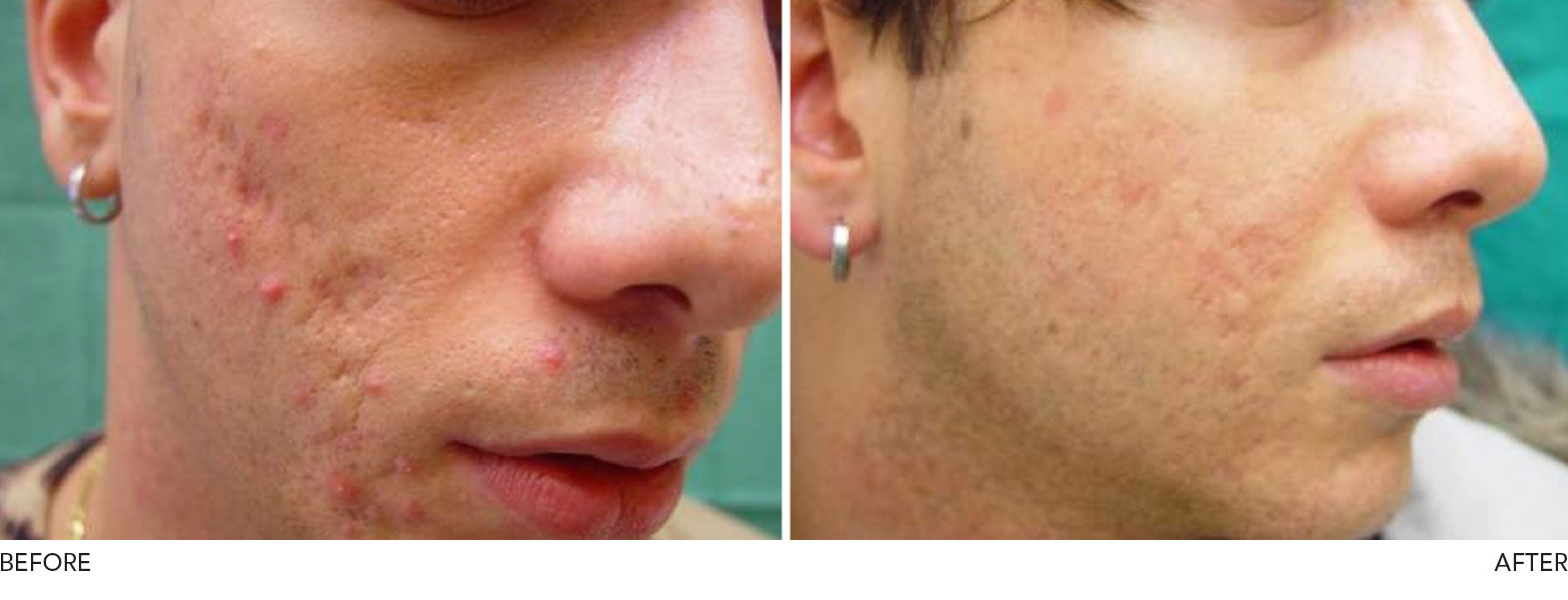 acne acne adult laser treatment