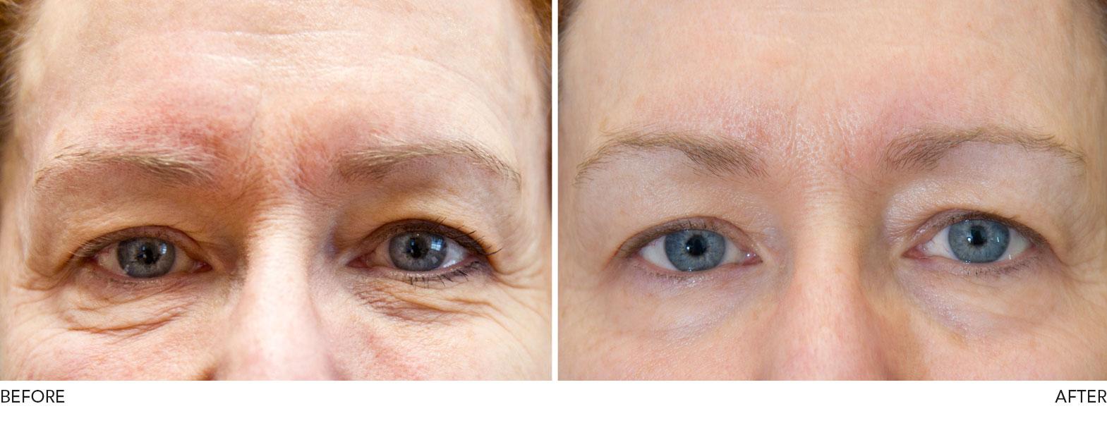 Exilis Elite Skin Tightening Cosmetic Clinic Burnley