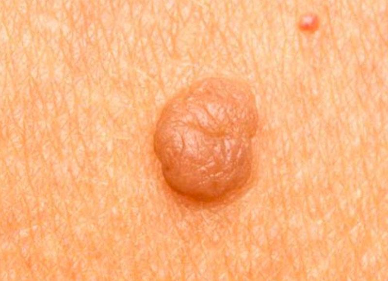 Are facial moles and warts necessary