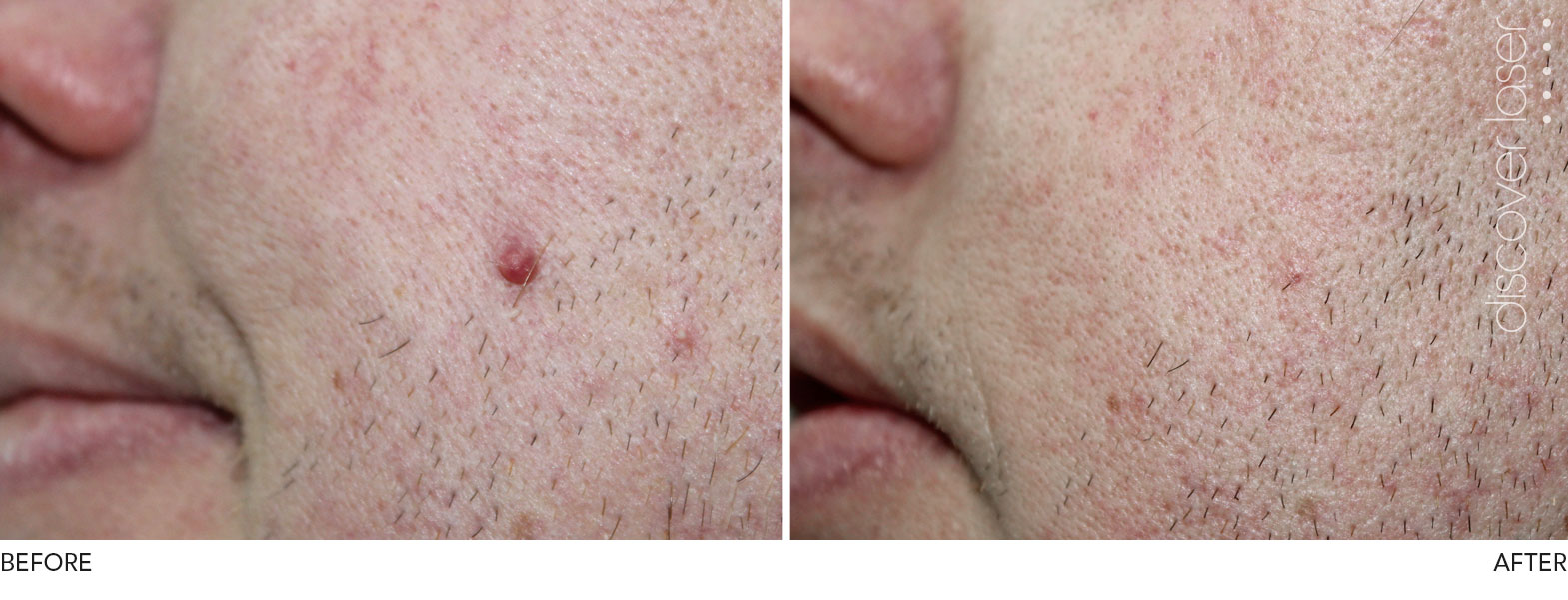 Facial mole removal nhs accept. opinion