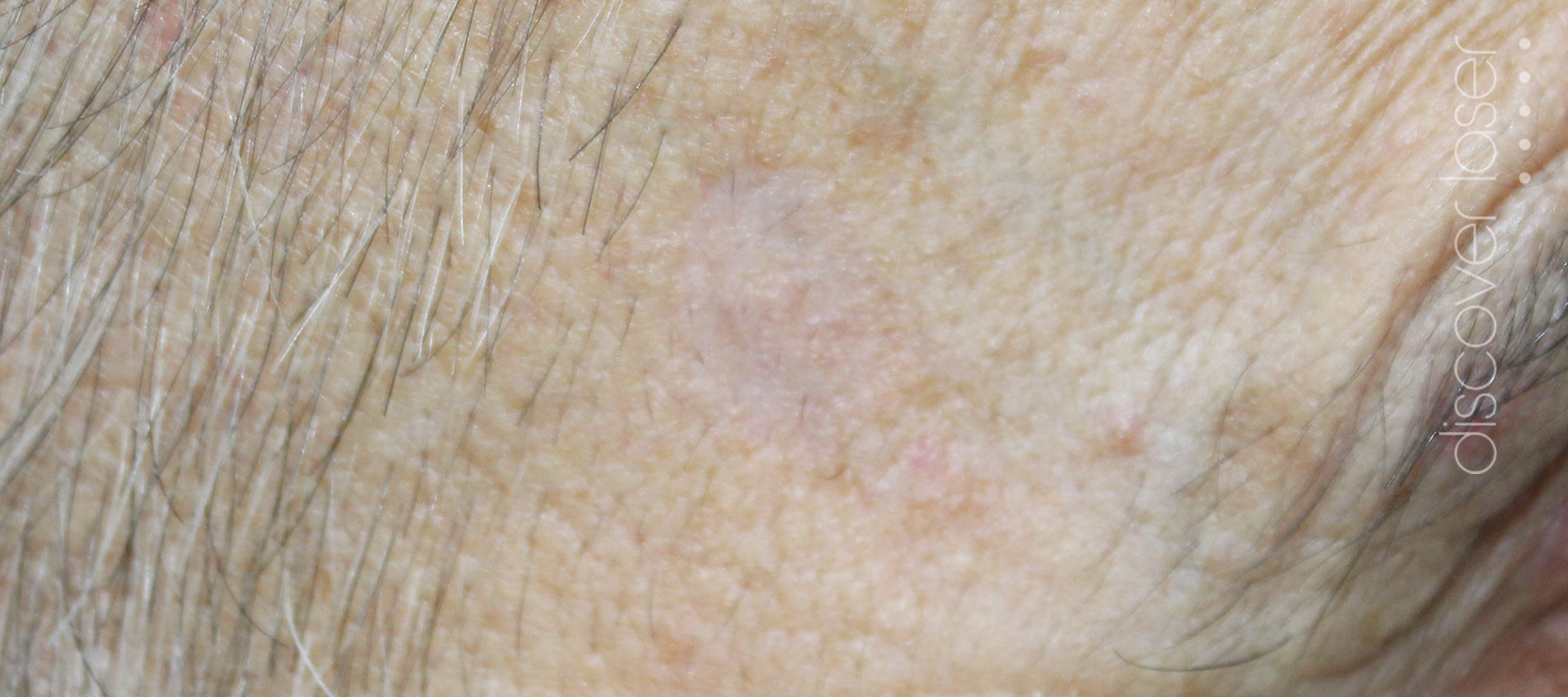 Seborrhoeic keratoses after treatment