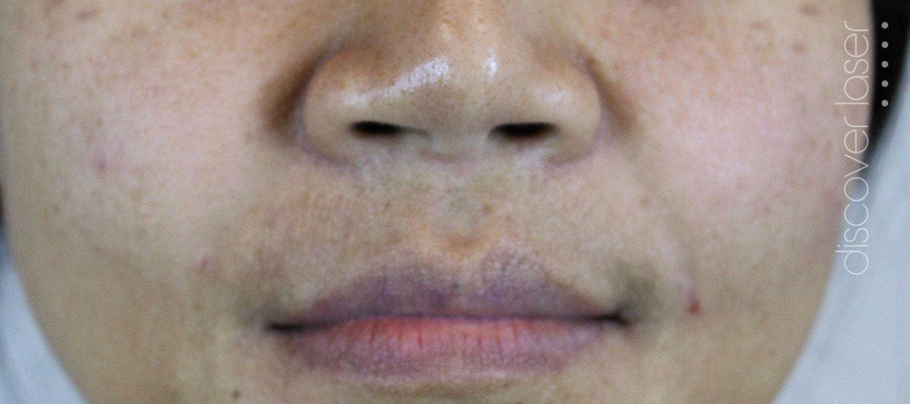 Dermal fillers nasal labial folds after