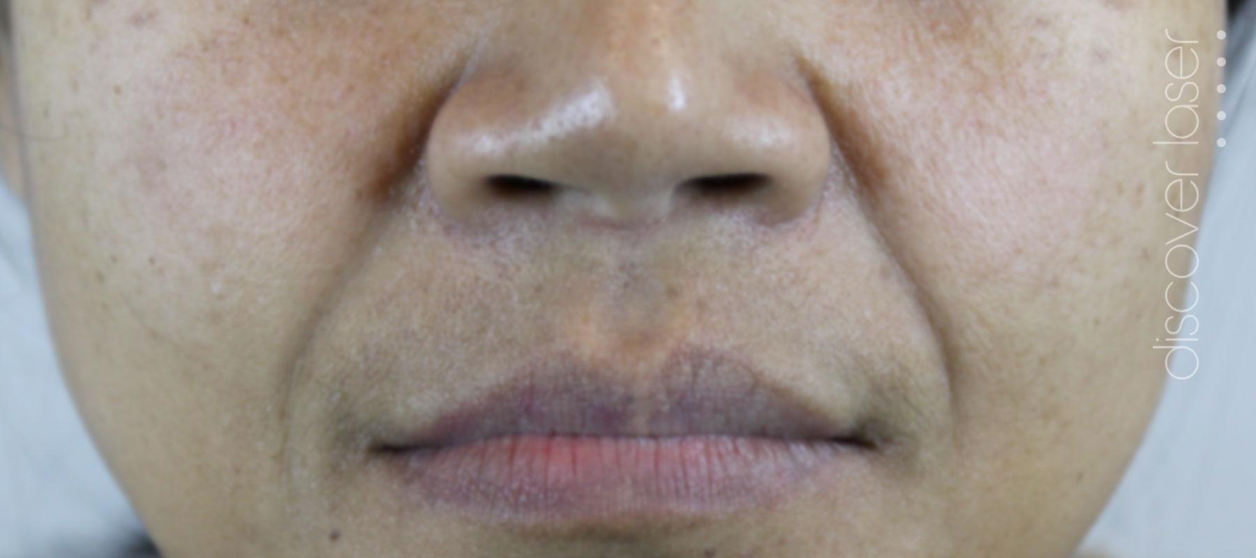 Dermal fillers nasal labial folds before