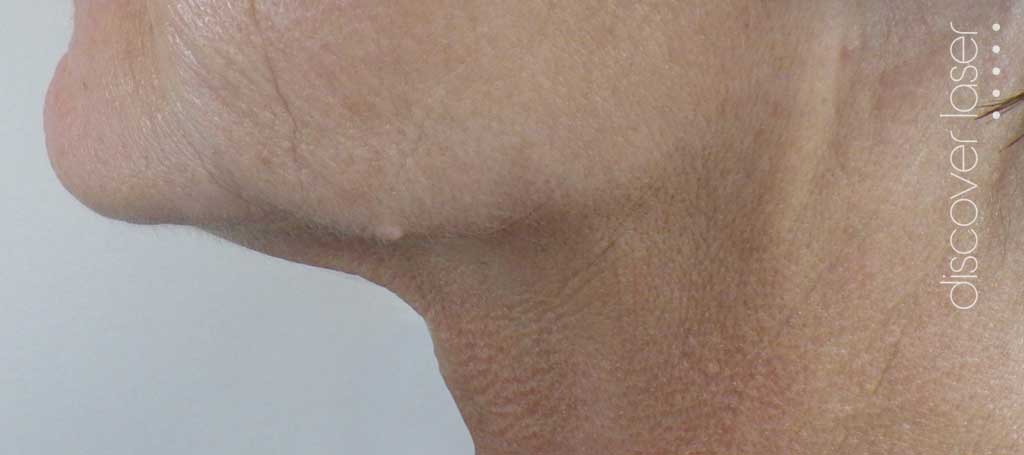 Double chin after plexr treatment