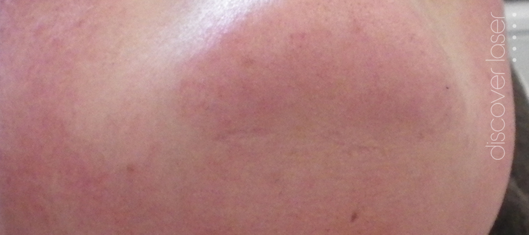Laser hair removal chin after treatment
