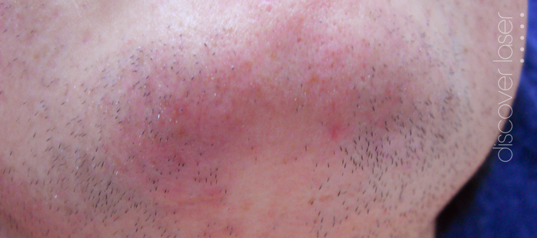 Laser hair removal chin before treatment