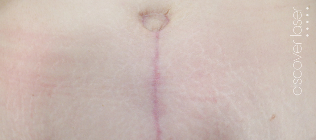 Stretch marks before treatment