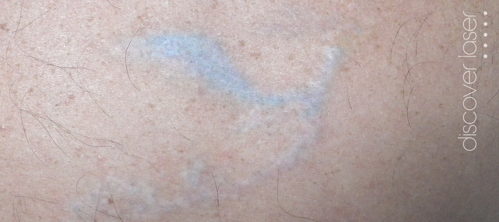 Tattoo removal after laser treatment