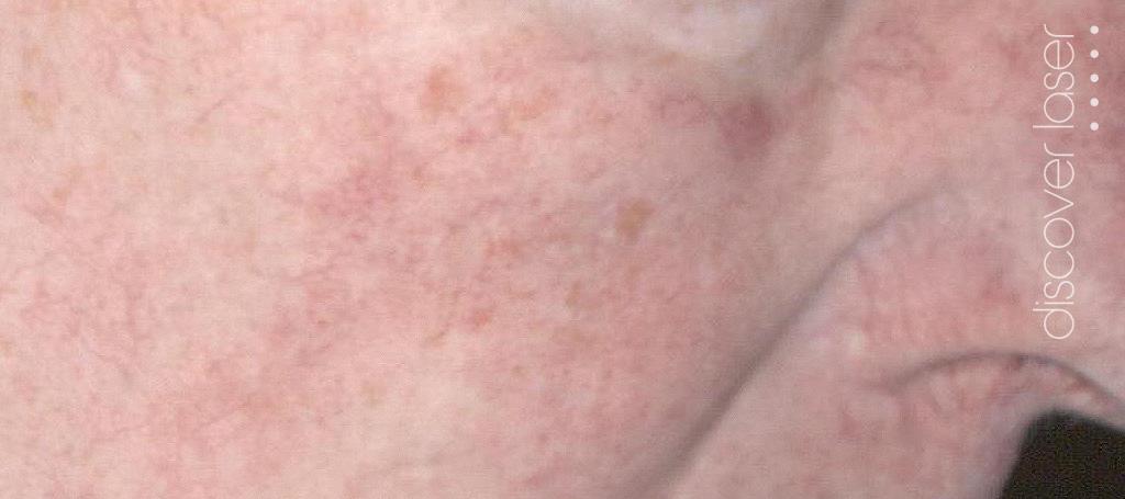 Laser Facial Vein Treatment After