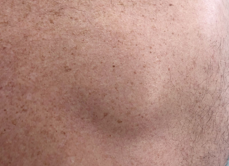 Lipoma removal