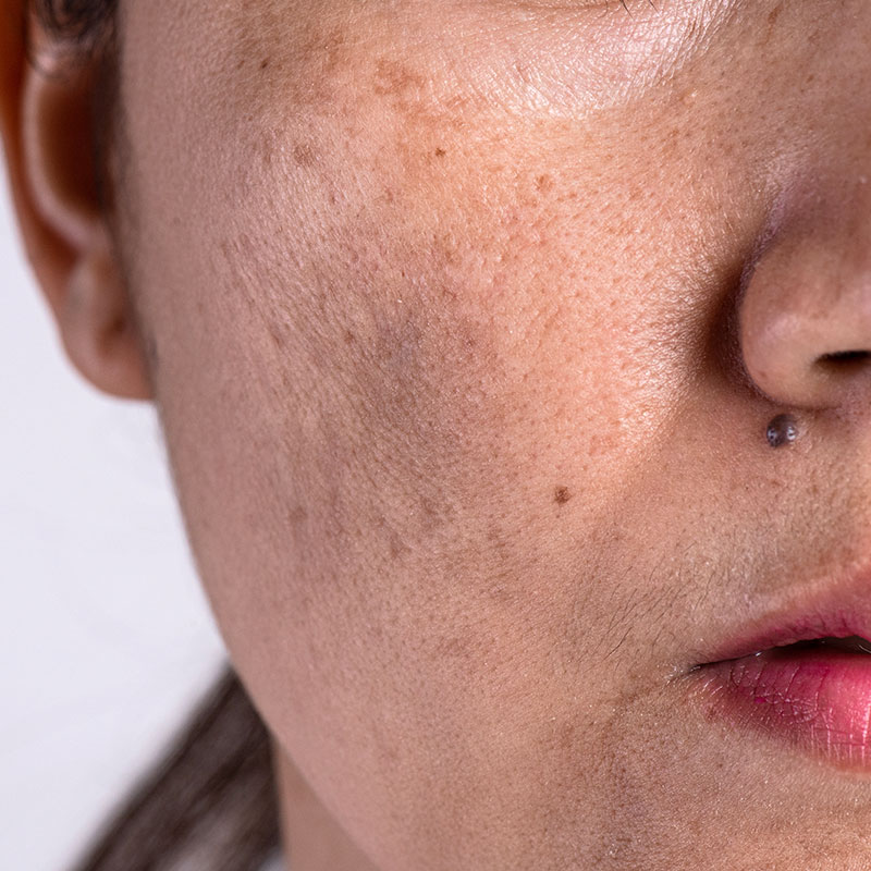 Photo of adult acne and acne scarring