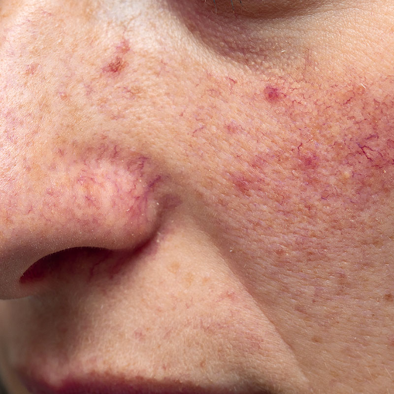 Photo of adult with rosacea
