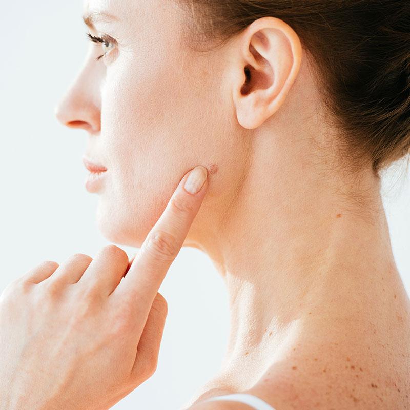 Photo of facial blemish