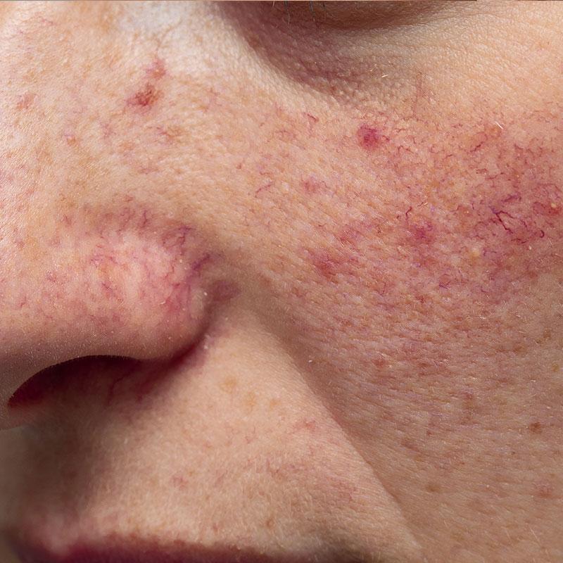 Photo of facial thread veins