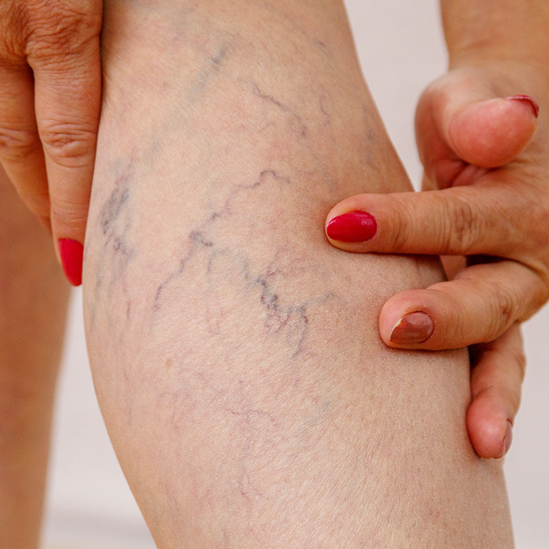 Photo of leg veins